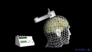 Tratamiento De La Depresión (6) - Terapia Electroconvulsiva