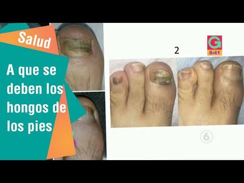 El hongo sobre las uñas de los pulgares de los pies los síntomas y el tratamiento