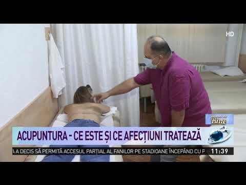 Varicoză de tratament de îngrijire medicală