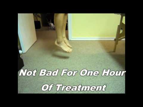 Video Amazing Ankle Sprain treatment - painfree with two hours in the clinic