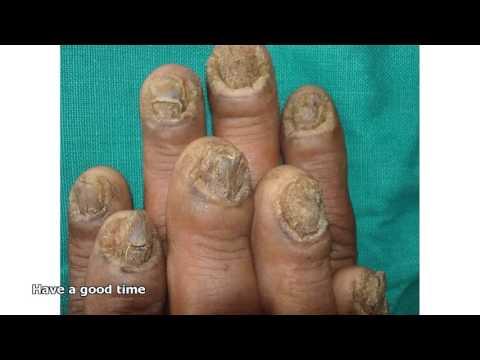 Na inirereseta ng mga doktor kapag kuko halamang-singaw
