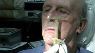 Dentures - Wax Rim Appointment - Wax esthetics, speech, CR, VDO