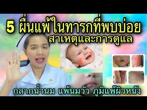 Segít e a vermox a pinwormsnek