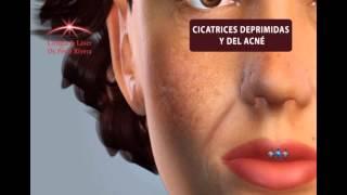 Relleno Facial con Ácido Hialurónico - Graziella Moraes