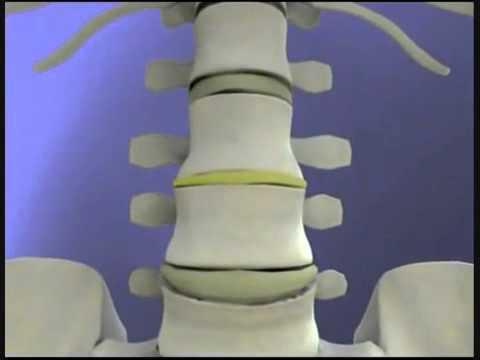 Удаление грыжи с грудного отдела позвоночника