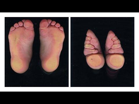 Par quel moyen denlever la veine sur les pieds
