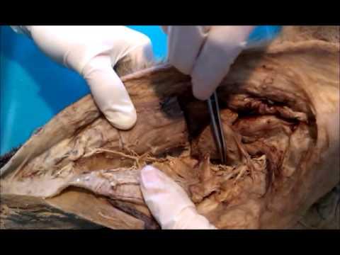 Pobolewania w osteochondroza