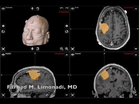 Operacja neurochirurgiczna - usunięcie wielkiego oponiaka mózgu