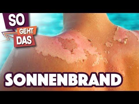 Warum pellt sich Haut nach einem Sonnenbrand?