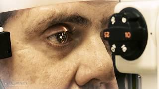 Glaucoma: Qué es, síntomas y tratamiento - Dr. J. Luis Rodríguez Prats - Oftalvist