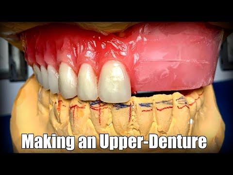 Making an Upper-Denture