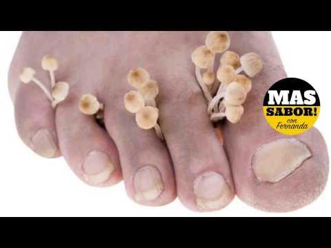 Si puede contagiarse el niño por el hongo de los pie