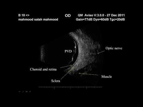 Cercetare derinat în oftalmologie