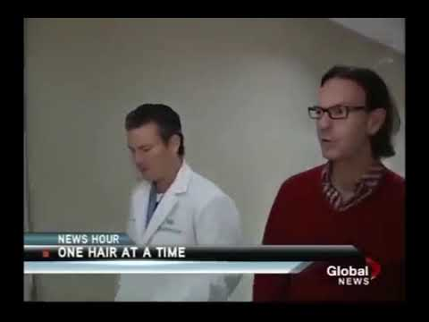 Video ARTAS FUE Hair Transplant (Robotic Hair Transplant) in Toronto