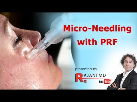 Micro-needling video