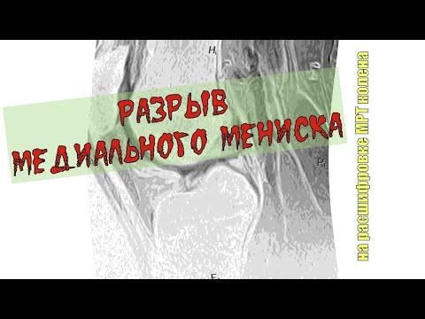 1 fokozatú térdízületek osteoarthritis