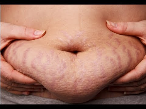 Video How to Get Rid of Stretch Marks Fast