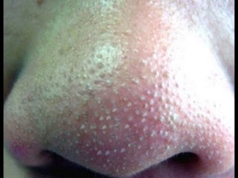 How To Clean Clogged Pores | How To Get Rid Of Whiteheads And Blackheads Mp3