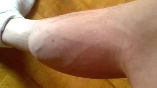 Rapid calf fasciculations