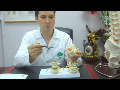 Остеохондроз позвоночника - симптомы, диагностика и лечение остеохондроза/ Игнатьев Родион
