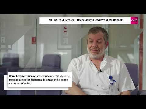 Eliminați operarea varicoasă