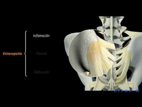 Dolor de espalda en la parrilla costal derecha