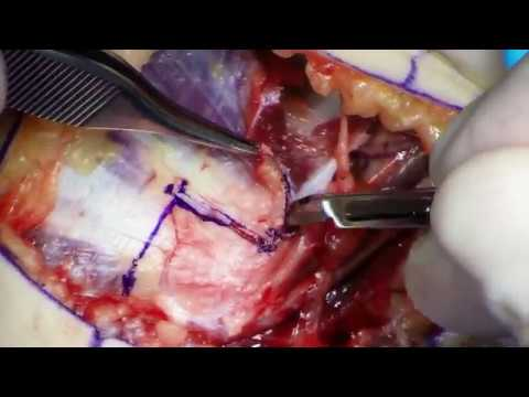 Posztraumás ízületi gyulladás hogyan kezelhető