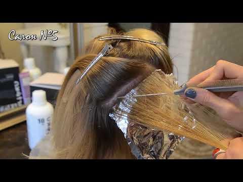Jeśli włosy wypadają na skroniach dlatego
