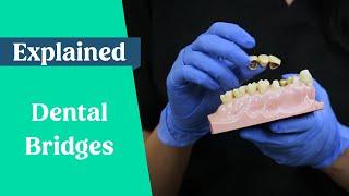 Dental bridges explained (False teeth alternative)