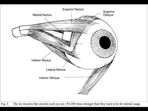 Látássérülés jár
