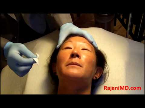 Chemical Peel-Brighten and Tighten skin -Dr Rajani Portland