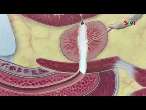 Những điều nam giới cần biết về ung thư tuyến tuyền liệt