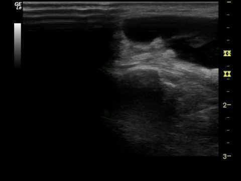 Verformungsgelenke dugootroschatyh l1-s1