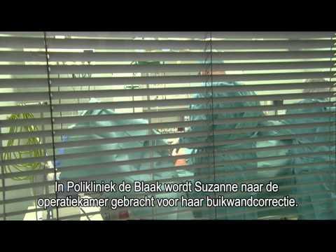 video Buikwandcorrectie thumbnail
