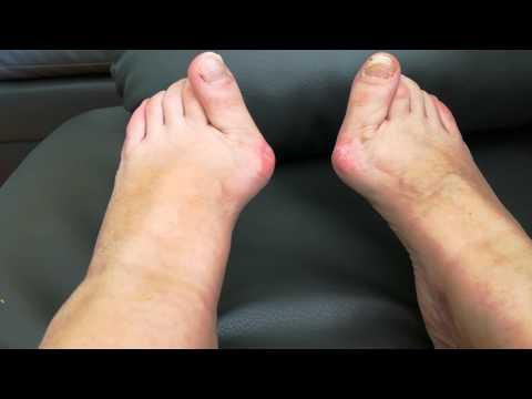 Jak usunąć kość z kciukiem u stóp