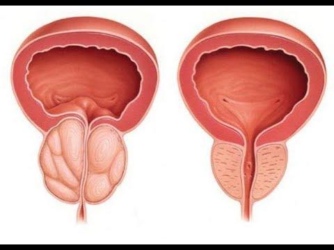 Лучший рецепт лечения простатита
