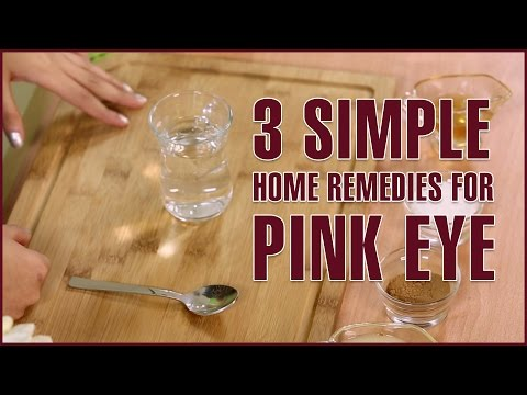 Video 3 Simple Natural Home Remedies For PINK EYE TREATMENT