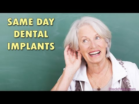 Dental implants in Tijuana, Mexico | Same Day Dental Implants