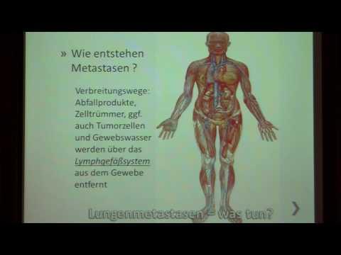 Krebs des Ellenbogens
