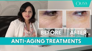 Anti-Aging Treatments - Reduce Signs Of Aging, Saggy Skin, Wrinkles, Sunspots & Dullness