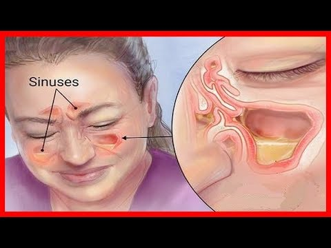 Dzhamaldinov artrosi musulmano dellarticolazione della spalla di tutte le sessioni per gli anziani