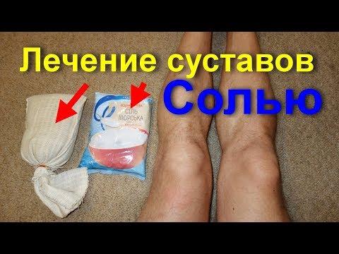 Болят колени и суставы? Лечение коленей и суставов солью. Лечебное средство при артрите и артрозе