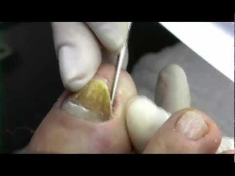 Akriderm del hongo de los pie las revocaciones