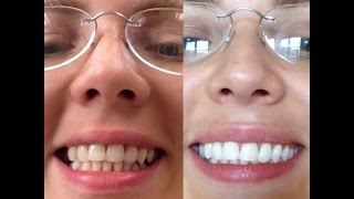 """""""Колись"""", чем отбелила зубки?!"""