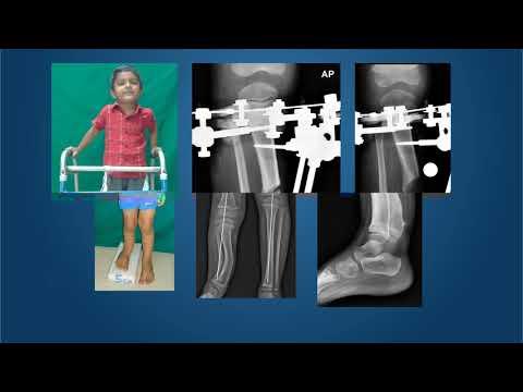 Tratamentul ligamentelor cruciate ale genunchiului