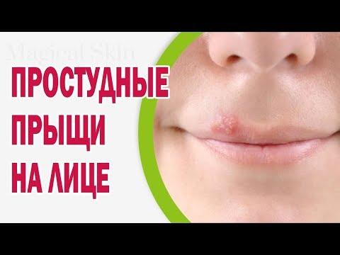 Простудные прыщи на лице: лечение, средства, профилактика