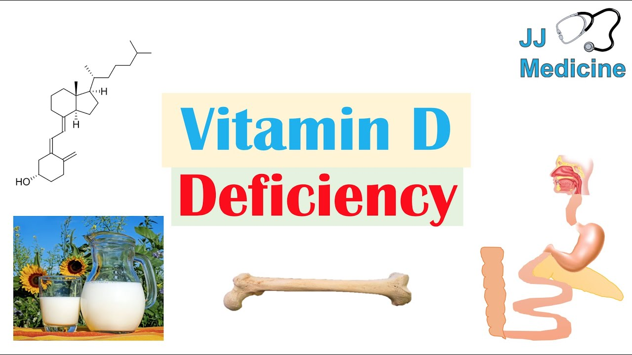 Why is there a chronic vitamin D deficiency?