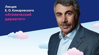 Атопический дерматит - Доктор Комаровский