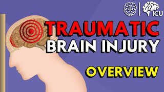 Overview of Traumatic Brain Injury (TBI)