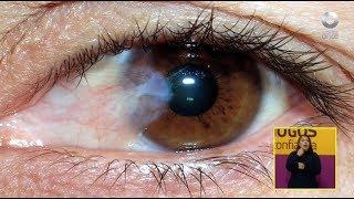 Diálogos en confianza (Salud) - Glaucoma y sus tratamientos